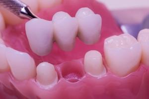 Dental restorations (prosthetics)