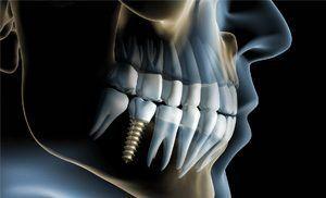 fog implantátum