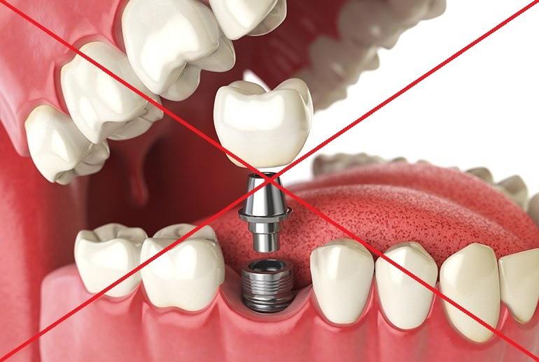 fogászati implantálás