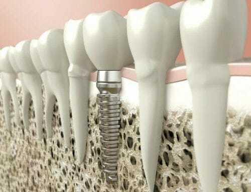implantálás után